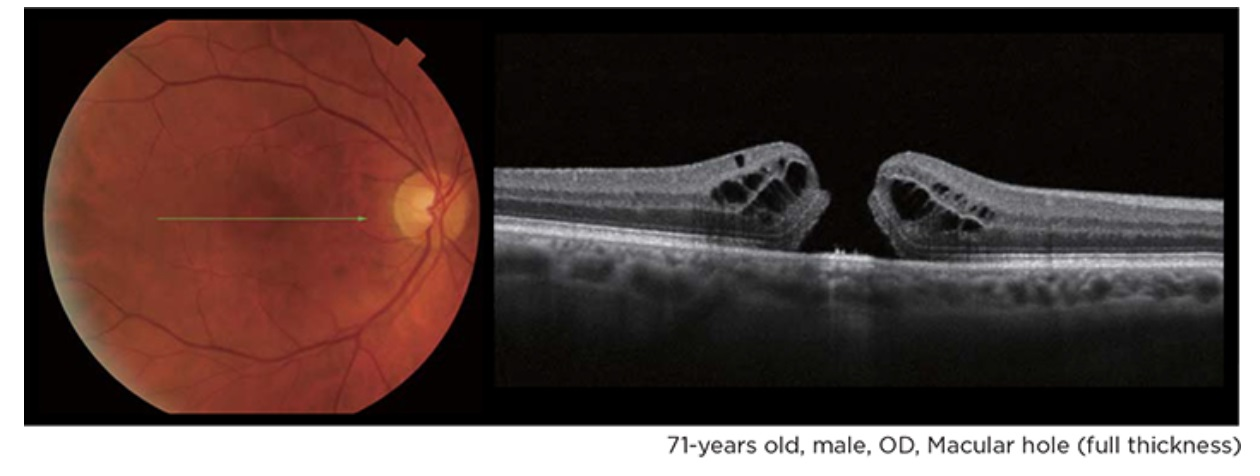 OCT - Fundus.jpg
